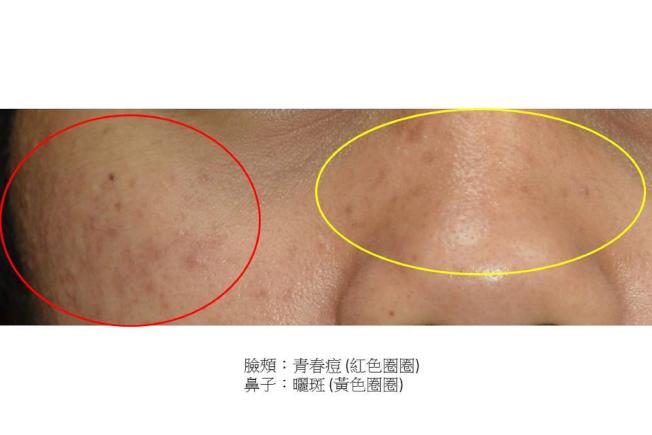 斑和青春痘的成因、好發年齡不同,不宜混為一談。圖中鼻梁上的是曬斑,臉頰上的是青春痘。(圖:奇美醫學中心提供)