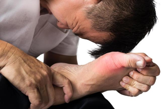 研究發現,痛風者較可能得到糖尿病。(Getty Images)