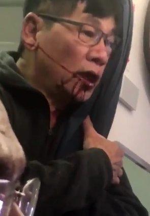 69歲華裔醫師陶大衛 遭黑色恐怖分子拖下機血濺機艙