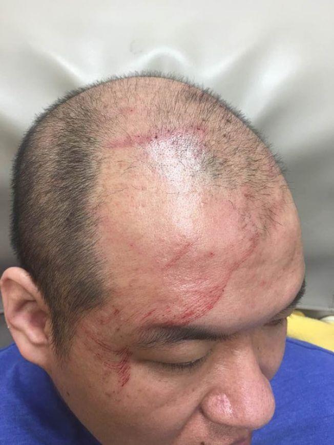 莫名被毆打,江賢鋒渾身是傷。(記者黃伊奕/攝影)