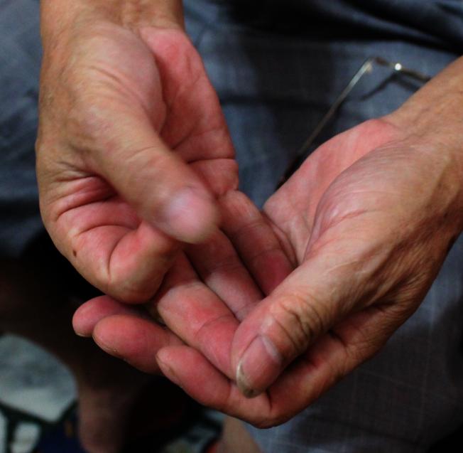 手指發麻可能是許多疾病的先兆。(本報資料照片)