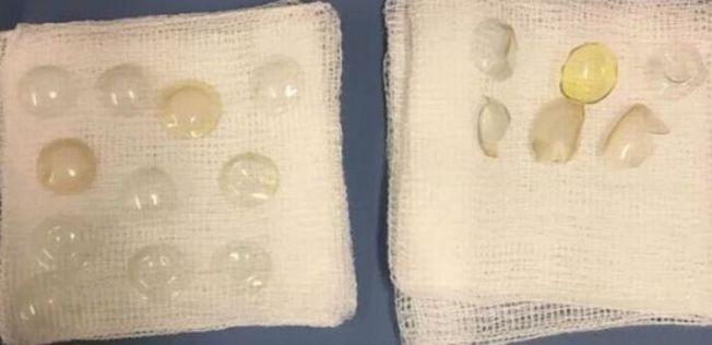 醫生替婦人開白內障手術,竟從婦人眼睛內取出27片隱形眼鏡。(取自鏡報)