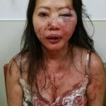 亞裔女超市停車遇搶 力抗雙匪滿身血