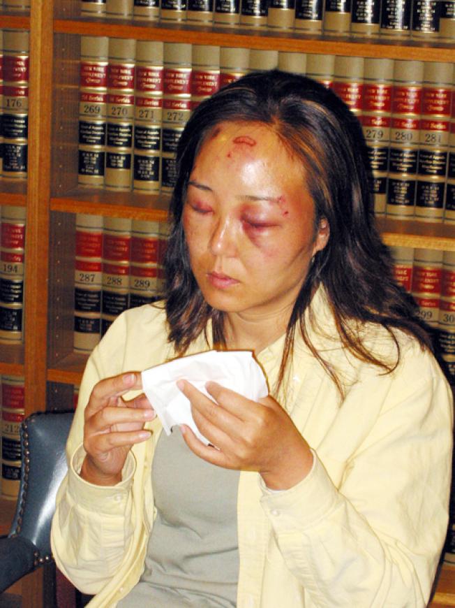 來美旅遊的天津女商人趙燕,2004年7月21日晚在美加邊境的尼加拉大瀑布觀賞夜景時,遭執勤的聯邦海關人員毆傷。圖為趙燕出面說明遭施暴經過。(本報資料照片)