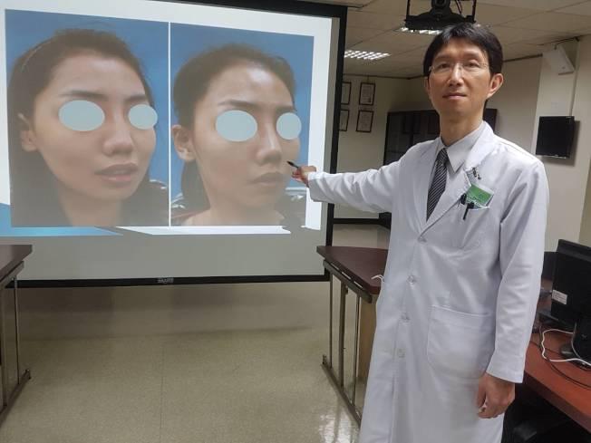 高市聯合醫院耳鼻喉科主任張哲銘說,有28歲女性鼻子塌陷,年年打玻尿酸保持直挺,後因呼吸不順才到耳鼻喉科治療,並接受肋軟骨整鼻手術重建鼻形。(記者蔡容喬/攝影)