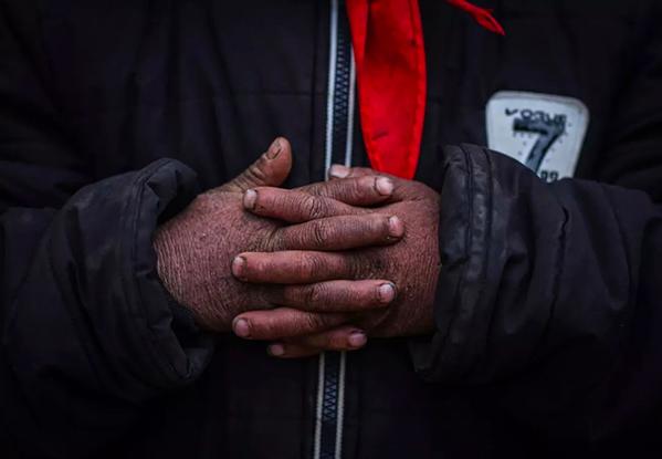 學校中多數孩子的手都有凍傷。圖/擷取自「都市時報」微信公眾號