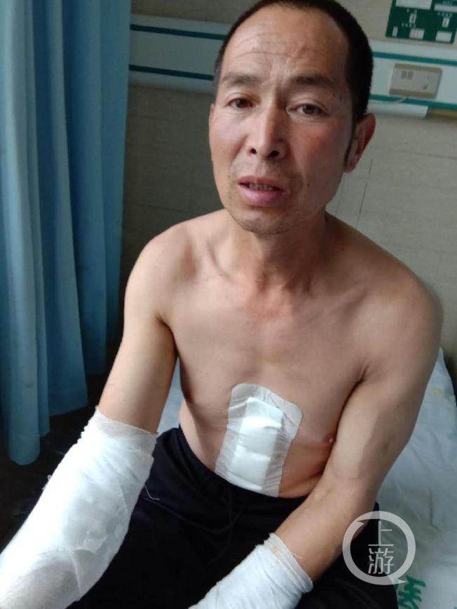 小菲父亲胸部、腿部及双臂受伤。 (取材自上游新闻)