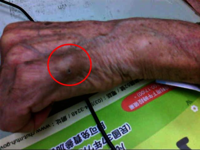 红圈处为左手第五指表皮样囊肿,治疗以切除为主。 (图:台大新竹分院提供)
