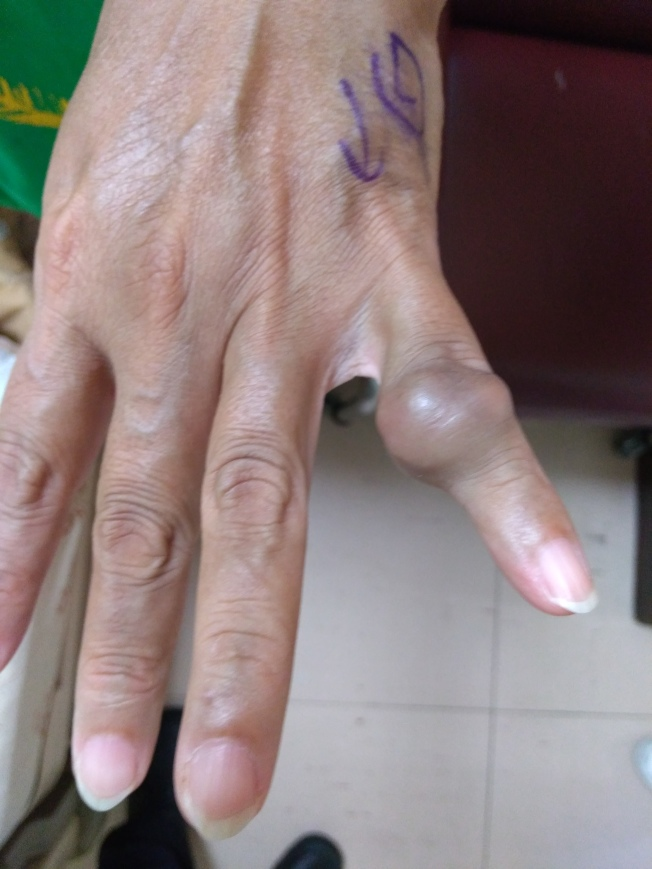 手部软组织肿瘤中第二常见的腱鞘巨细胞瘤,好发于30至50岁族群,常见于掌心侧的指间关节。 (图:台大新竹分院提供)
