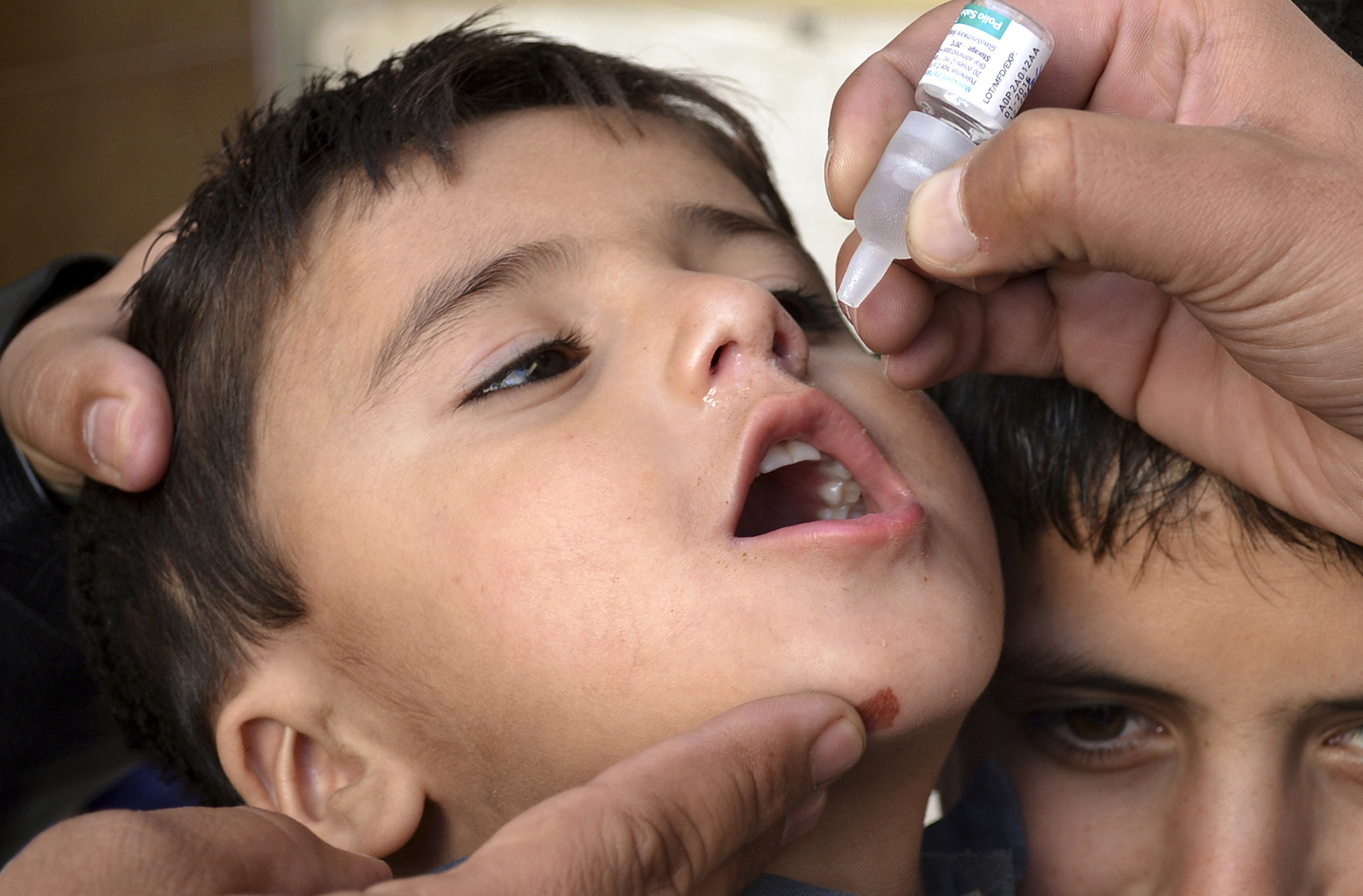 巴基斯坦於2016年底在Baluchistan的下水道系統發現小兒麻痺病毒,衛生人員2017年1月2日為一名小孩施以口服小兒麻痺沙賓疫苗。(美聯社)
