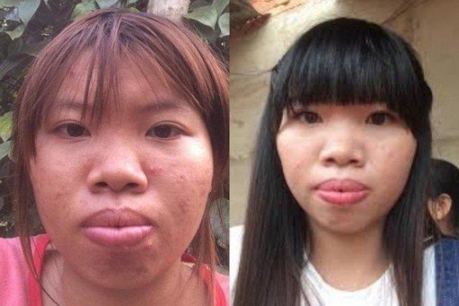 郭金鳳整容前因為外貌不佳常被同儕霸凌,相親也頻被打槍。圖片來源/詩華資訊