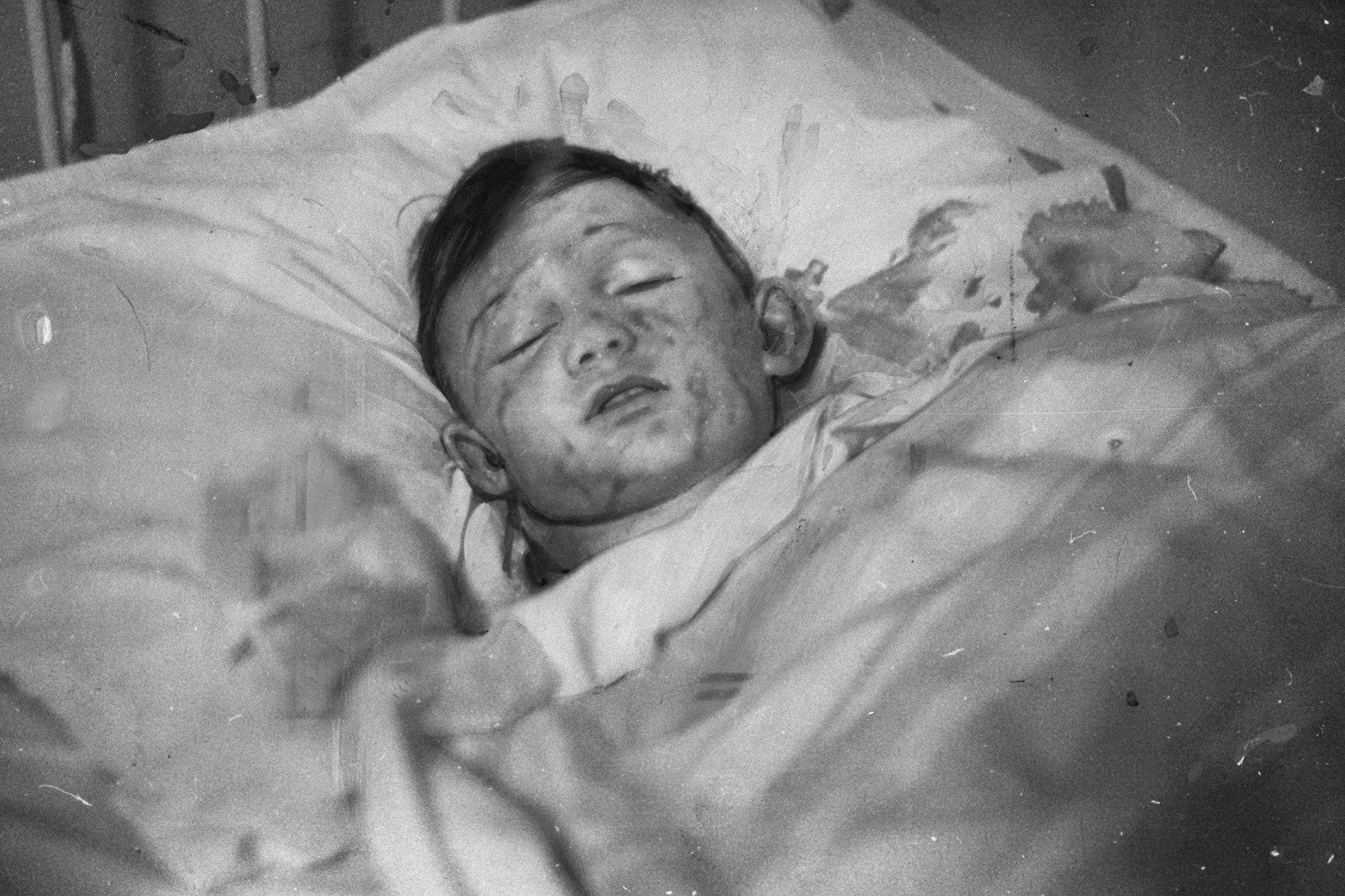 倖存者Werner Doehner被燒傷,在醫院治療。(Getty Images)