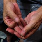 手指發麻 恐是疾病徵兆