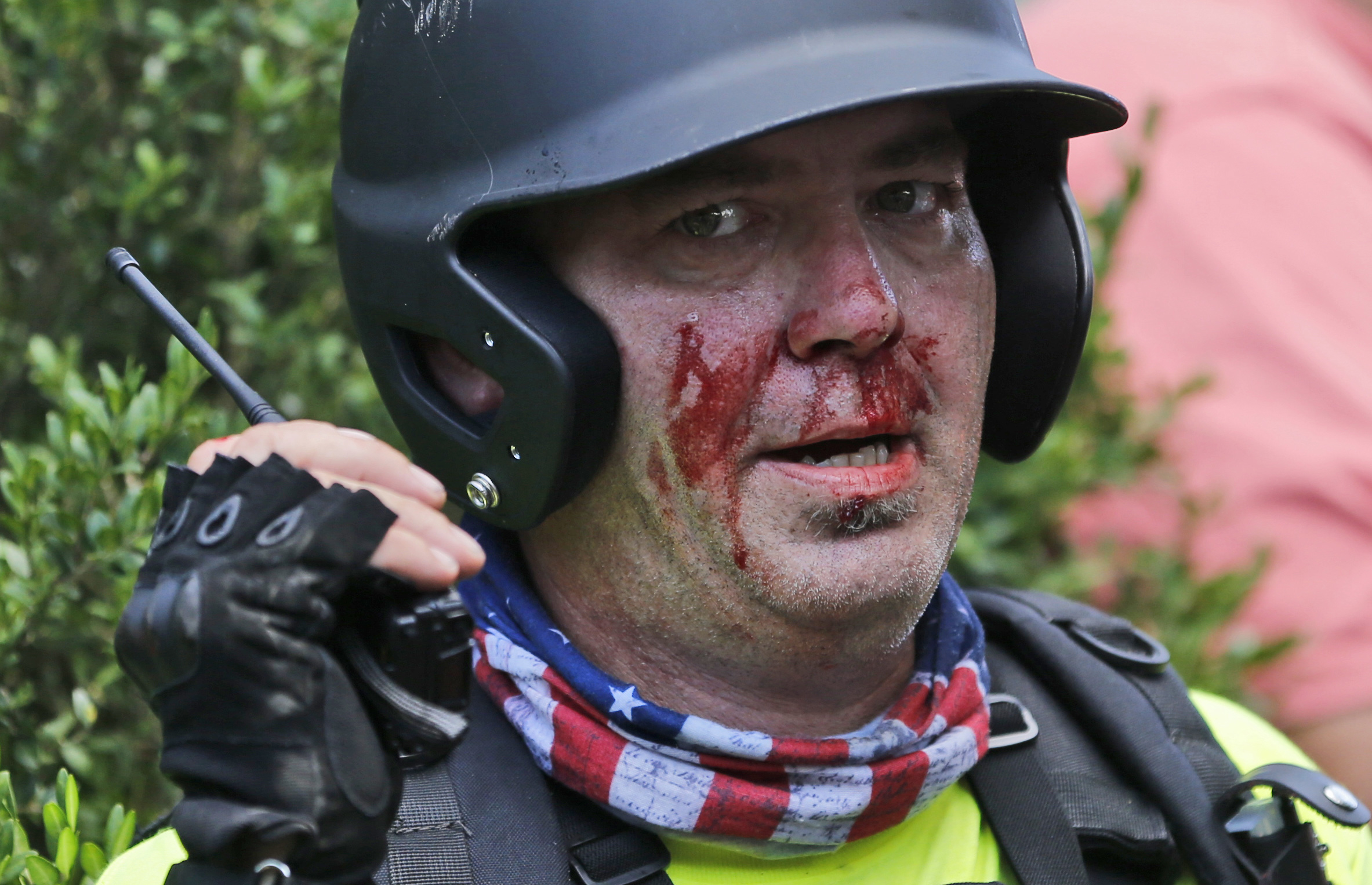 擁護白人至上主義的民眾與反對人士爆發流血衝突,圖為一名白人至上主義的擁護者因衝突導致臉上流血。(美聯社)