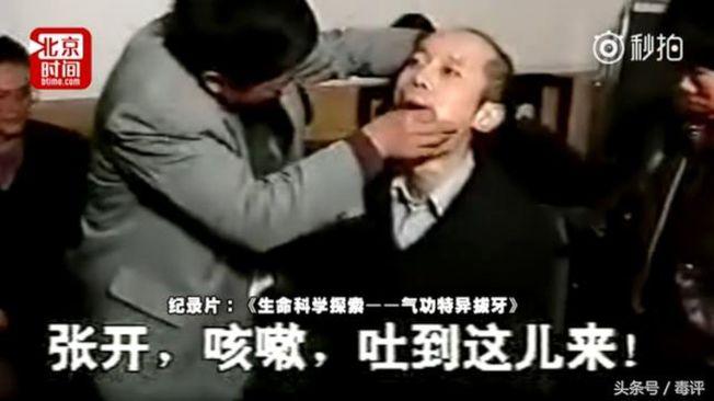葛優正在接受「氣功拔牙」。(取材自北京時間)