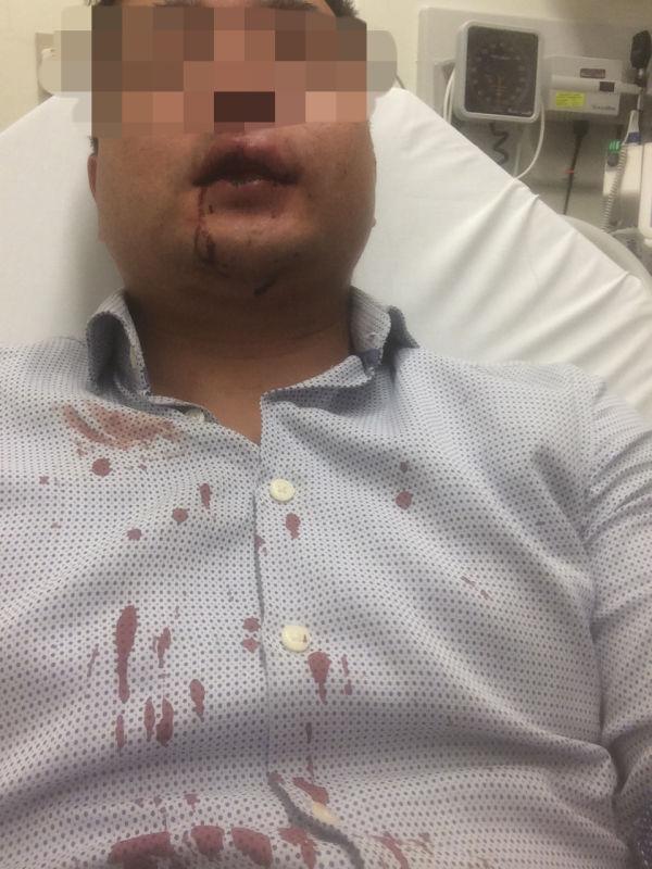 鄭先生在街邊與收垃圾的工人發生爭執,牙齒被打斷。(鄭先生提供)