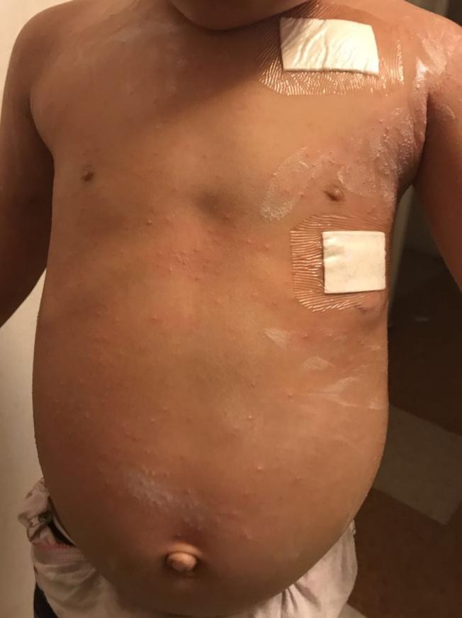 因患有癌症,「小不點」肚子腫脹異常。(陳女士提供)