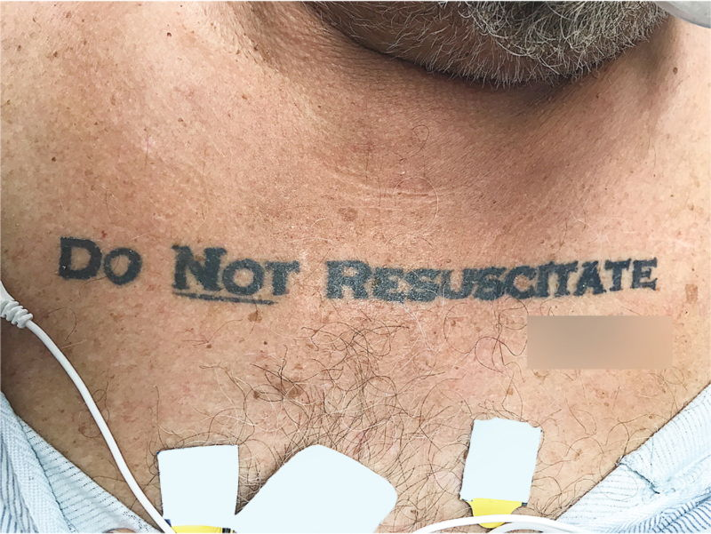 該名男子胸前刺了「拒絕心肺復甦」(Do Not Resucsitate)字樣。(取材自新英格蘭醫學期刊)