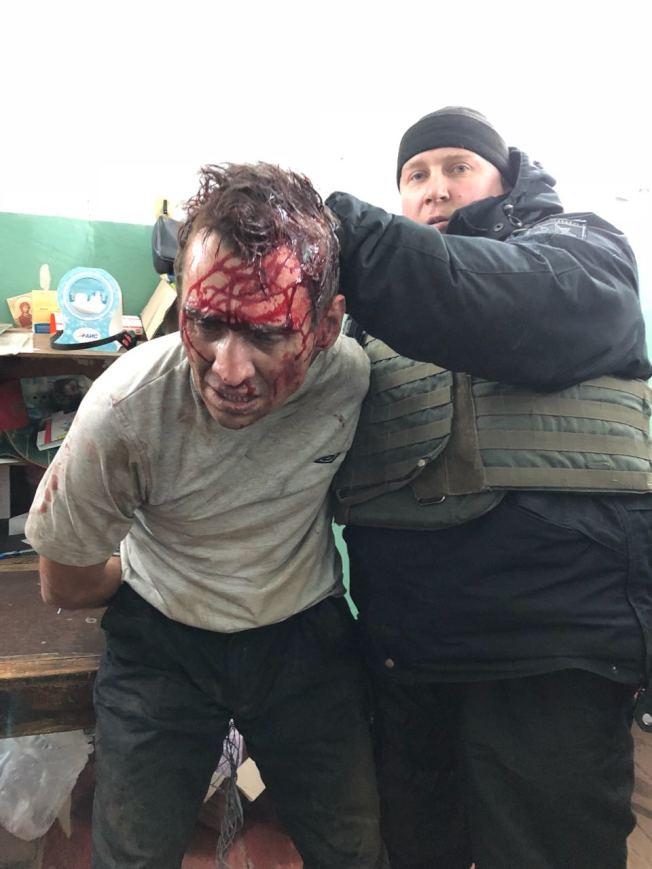 烏克蘭郵局人質危機落幕,嫌犯遭警方逮捕時血流滿面。(取材自推特)