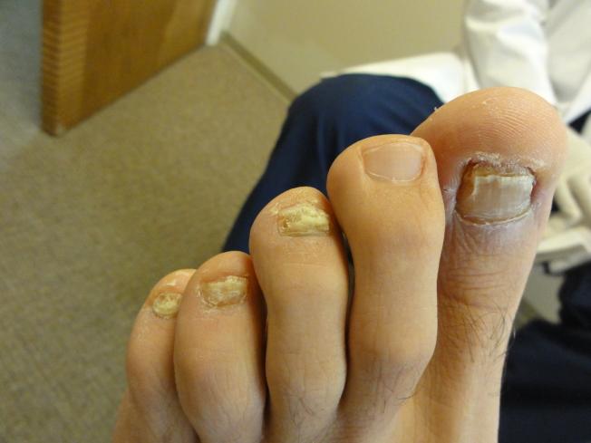 灰指甲激光治療前