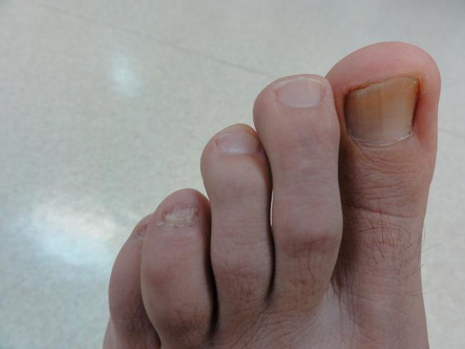 灰指甲激光治療後