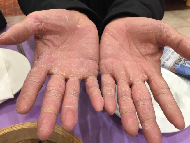 連德清布滿老繭的雙手。(記者黃伊奕/攝影)