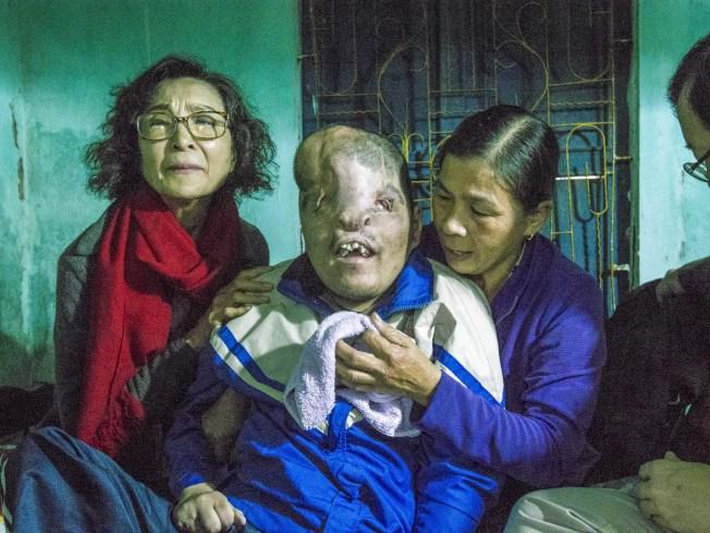 阿福的母親見到20年協助醫療矯治計畫的藝人陳淑麗(左)後緊緊抱住他許久。(記者林良齊/攝影)
