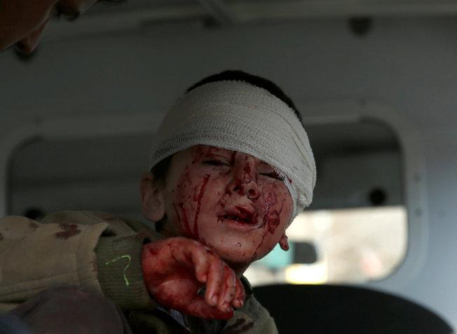 一個頭部受傷的男孩,坐進救護車。(路透)