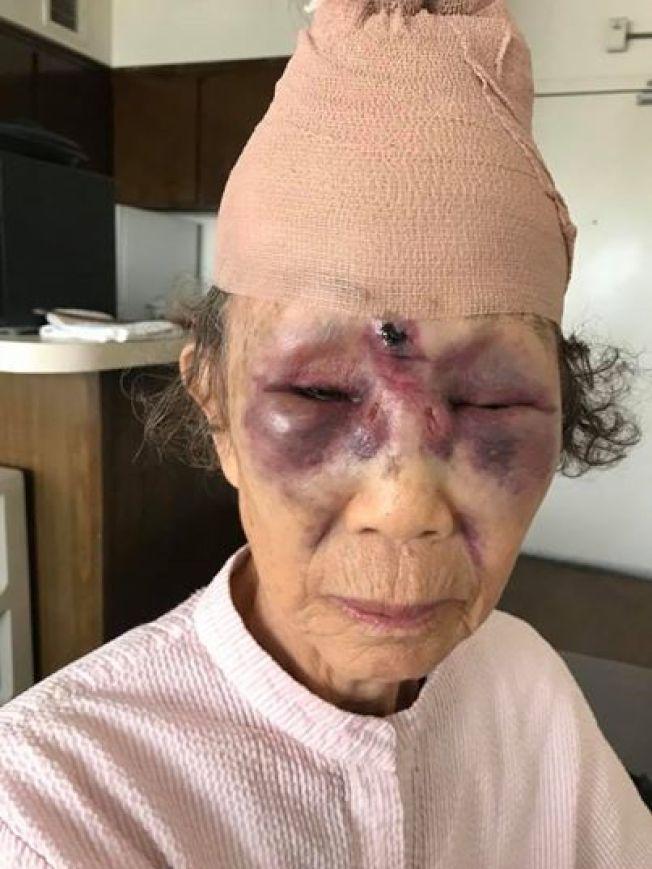 85歲的老太太被無端打得鼻青臉腫。(取材自臉書)