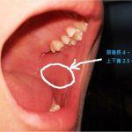 輸尿管狹窄 用口腔黏膜重建