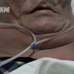 白酒當水喝 湖南68歲大爺喝成「綠巨人」