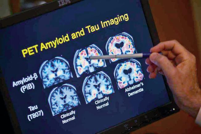 由華裔科學家黃亞東主導的研究團隊可能已找到治療阿茲海默症的方法。(美聯社)