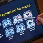 華裔科學家 找出阿茲海默致病關鍵