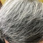 眼裡不容一根白髮?小心拔出毛囊炎