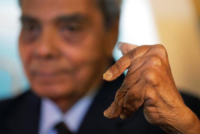 印度阿公奇拉爾11日剪下左手創金氏世界紀錄的超長指甲,他左手已因為留指甲而變形。(路透)