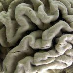 減緩病情惡化!阿茲海默新藥試驗「傳佳音」