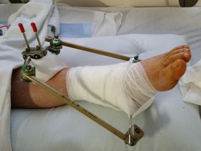 梅女士因車禍撞斷腳踝,獲賠465萬元。(馮緣提供)