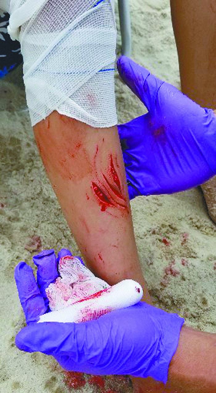 12歲女孩在火島水手港,水深只到她的腰處,腿部被疑似沙魚咬傷。(美聯社)