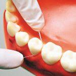 專家觀點 / 牙齒不是搖了就要拔