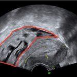 長期經痛 子宮內膜異位竟誤診惡性腫瘤