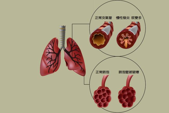 每天適度運動 肺阻塞死亡率降