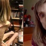 她厭食症險喪命 醫生一句「扮活屍」她開始進食