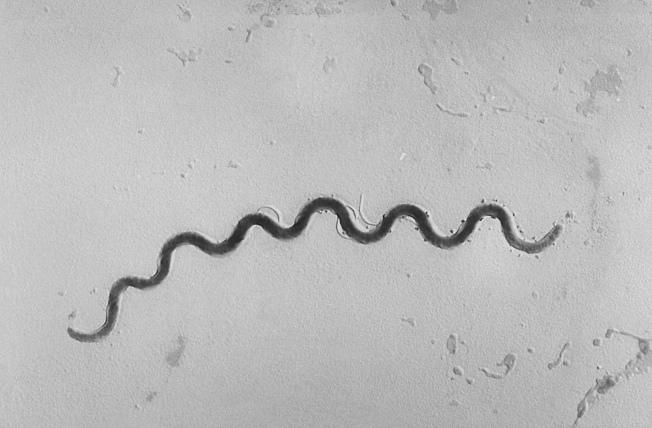 梅毒細菌可以感染其他器官,並傳染給胎兒或新生兒。(美聯社)