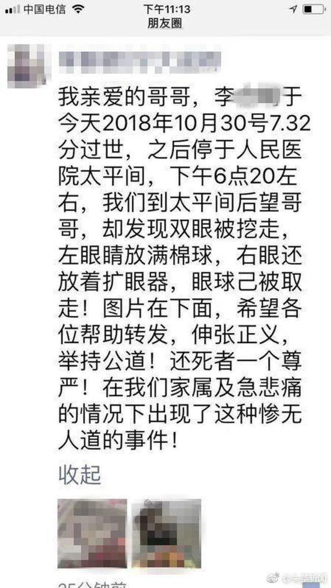 李女士在網上發文控訴哥哥遺體慘遭挖去雙眼的慘狀。(取材自微博)