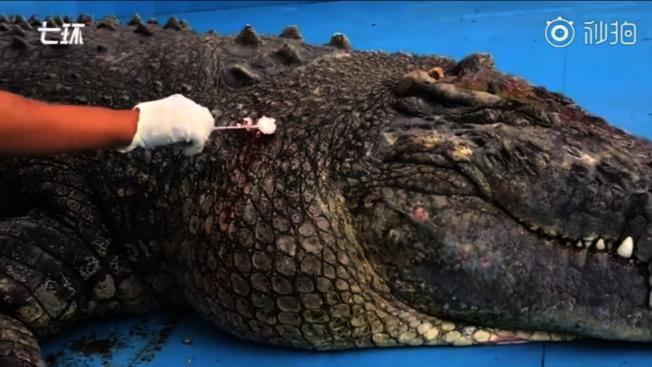 工作人員為鱷魚療傷。(視頻截圖)