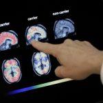 阿茲海默症徵兆 這個技術可以提早6年偵測出