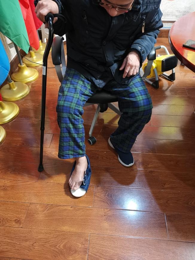 雷先生送外賣期間被劫匪搶劫,腳也被打骨折。(記者黃伊奕╱攝影)