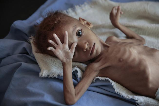 葉門一名嚴重營養不良的男孩躺在哈傑醫院的病床上。(美聯社)