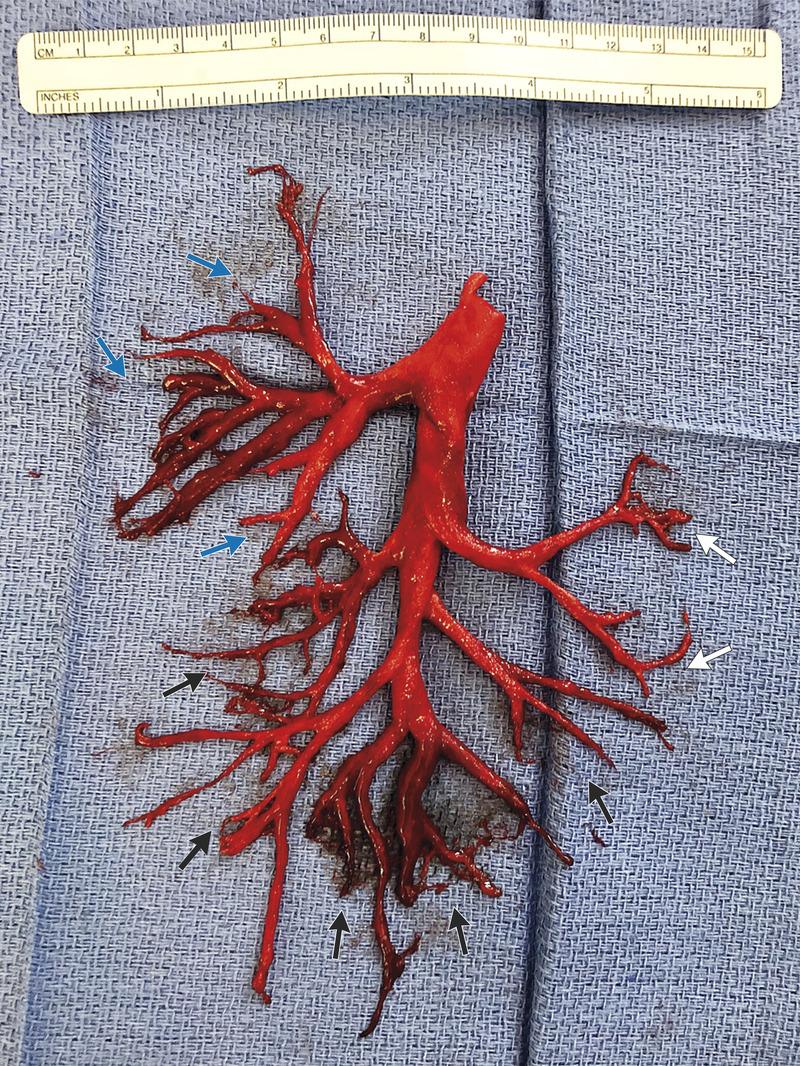 加州男子因病劇咳,咳出右邊整個支氣管樹形狀的血塊。(擷自新英格蘭醫學期刊網站)