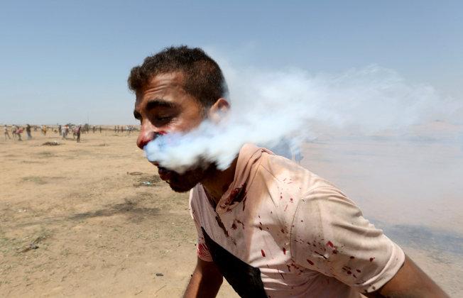 巴勒斯坦一名男子的臉部遭催淚瓦斯罐擊中,血流不止。(路透)